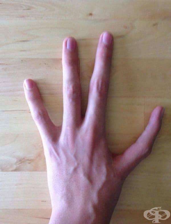 Лява ръка с четири пръста - на мястото на палеца има показалец.