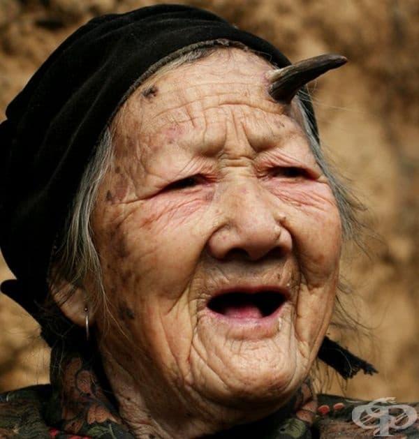 През 2010-а на 101-годишна възраст китайката Жанг Руифанг шокира света с появата на рог от лявата страна на челото. Той е започнал да се расте през 2009 г. и за 1 година е пораснал до 5 см. По-късно лекарите са установили наличието на втори рог от дясната