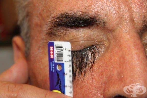Човекът с най-дългите мигли. 58-годишният китаец Валери Смагли е известен с най-дългите мигли в света - до 3,5 см. Човекът твърди, че растежът на миглите се дължи на специална диета, който той спазва. Смагли пояснява, че миглите действително му пречат.