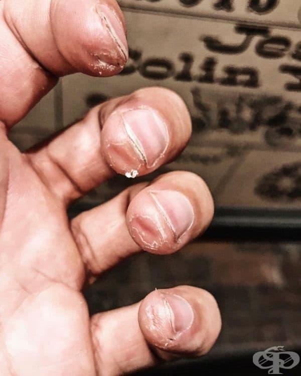"""""""Ръцете на професионален китарист в края на турне."""""""