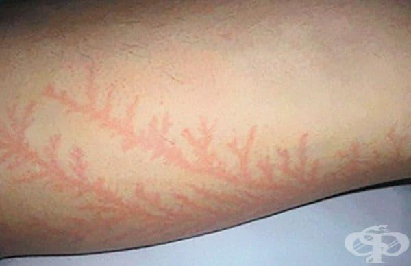 Това са белези от мълния, известни като Фигури на Лихтенберг.
