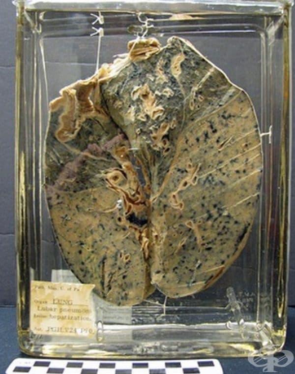 Бели дробове на човек, засегнат от пневмония.