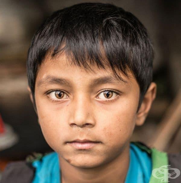 Момче от Непал със синдром на котешкото око.