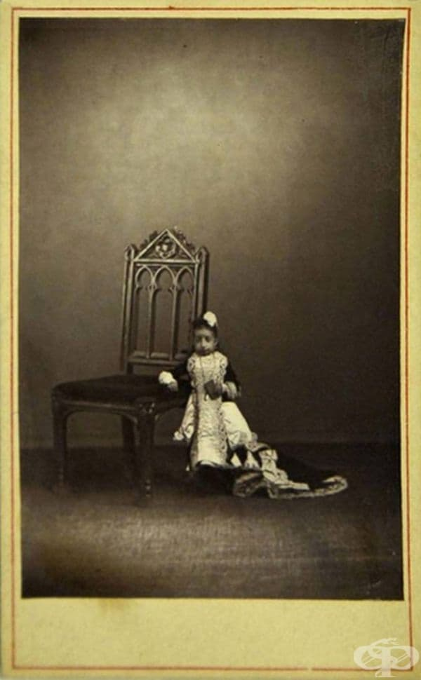 Лучия Зарате е възрастна жена с най-малкото тегло за цялата документирана история: на 17 години тя е тежала само 2,1 кг.
