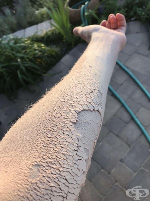 Дървесината по ръката изглежда като напукана кожа.