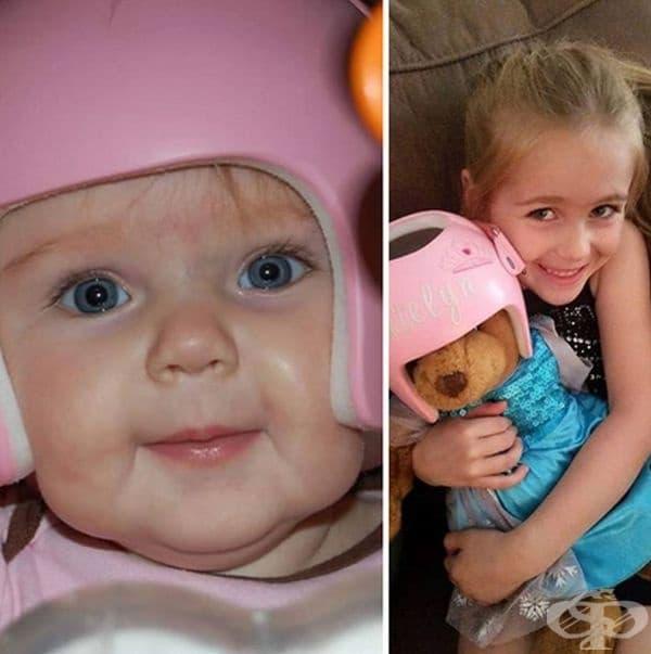 """""""Дъщеря ми носеше каска като малка. Сега тя е на 7 години и поставя каската на соите кукли и плюшени играчки."""""""