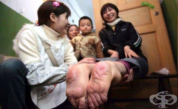 Момиче с обърнати крака. Уанг Фанг от Китай се движи много добре на необичайните си крака. 30-годишната жена категорично не се признава за инвалид и се чувства добре. Обърнатите й крака не й пречат да е движи спокойно и дори да бяга.