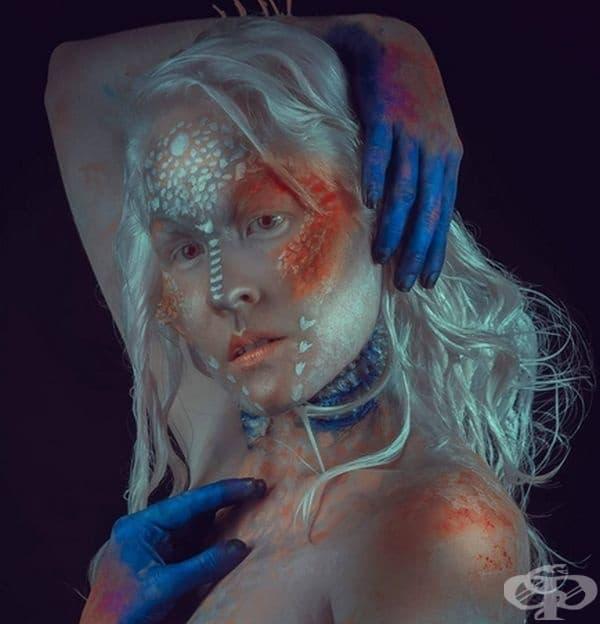 Има нещо магнетично в албиносите.