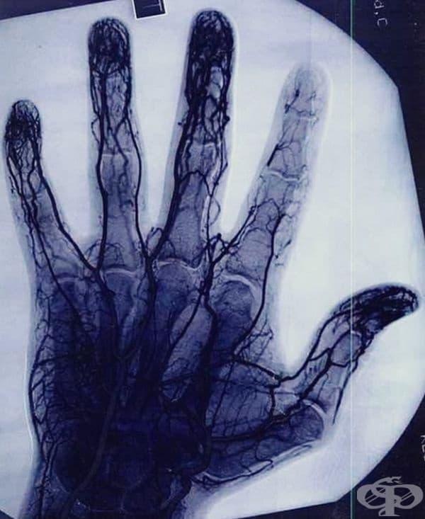 Тази ангиограма показва увреждането и намаляването на съдовата тъкан в показалеца на йo-йo майстор.