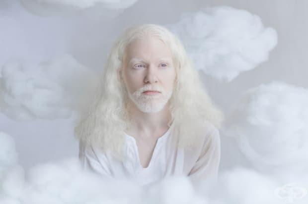 Хипнотизиращата ангелска красота на албиносите