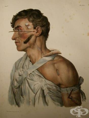 "Картината е от атласа на Жан-Баптис Марк Боржери, озаглавен ""tramplet de l'anatomie de l'homme""."
