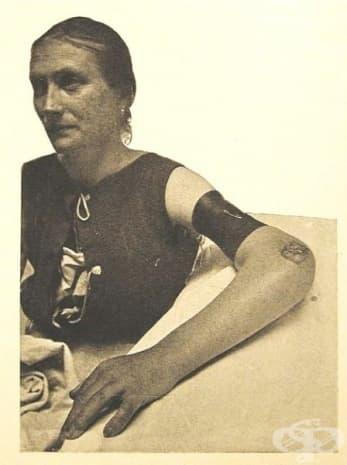 Лечение, предизвикващо хиперемия, приложено от Мейер и Шмиден за третиране на туберкулоза на лакътя.