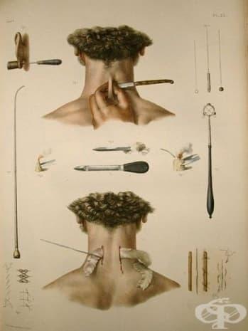 Изображение, част от атласа на Боржери.