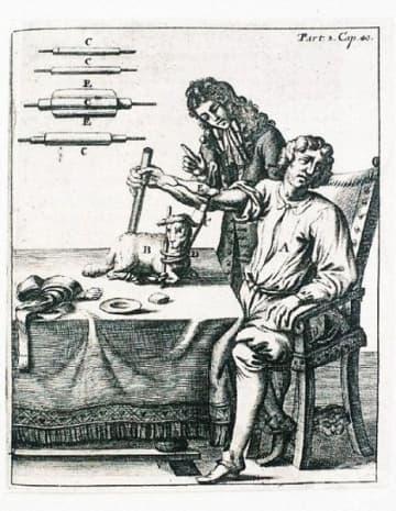 Първата хемотрансфузия, осъществена между човек и агне.