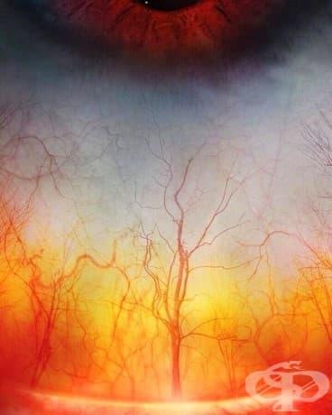 Човешкото око изглежда като горяща гора
