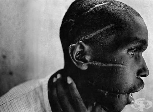 Млад мъж от Руанда показва белезите, които е получил в концентрационен лагер.