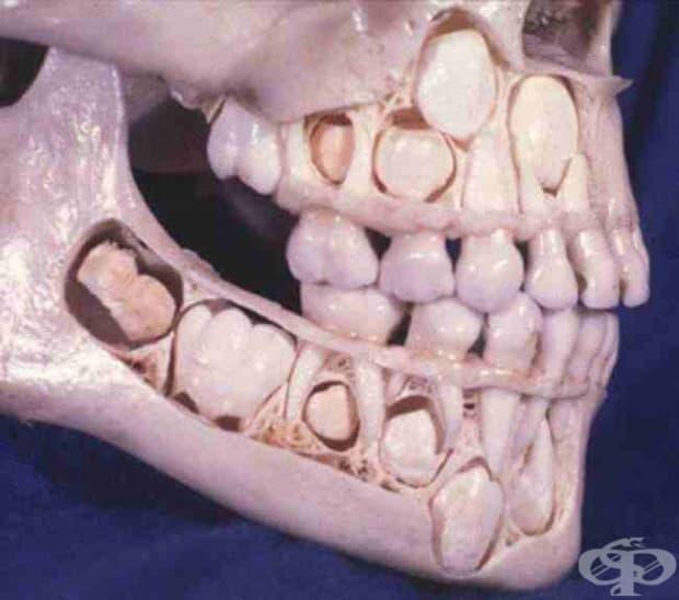 Череп на дете, преди да е сменило млечните си зъбки