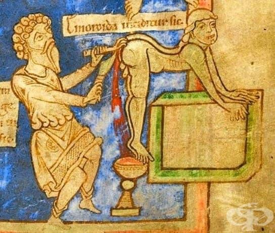 Когато лекарят ви постави в най-странната позиция, за да достигне вашите хемороиди.