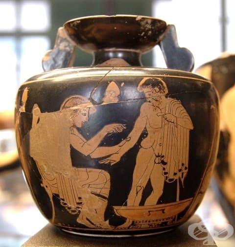Арибал (съд) с изображение на кръвопускане – древен метод на лечение. Ранен класицизъм (480-470 г. пр. н. е.).