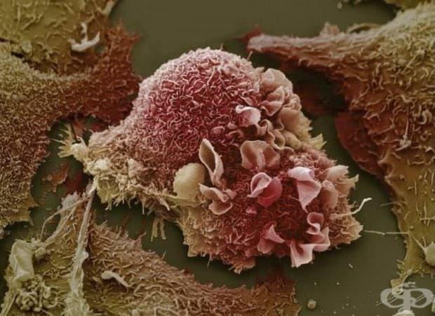 Рак на белия дроб.