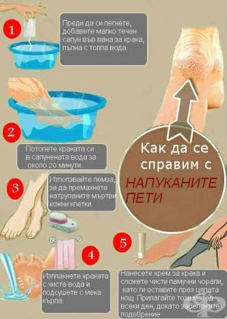 Лесен начин за лечение на напукани пети