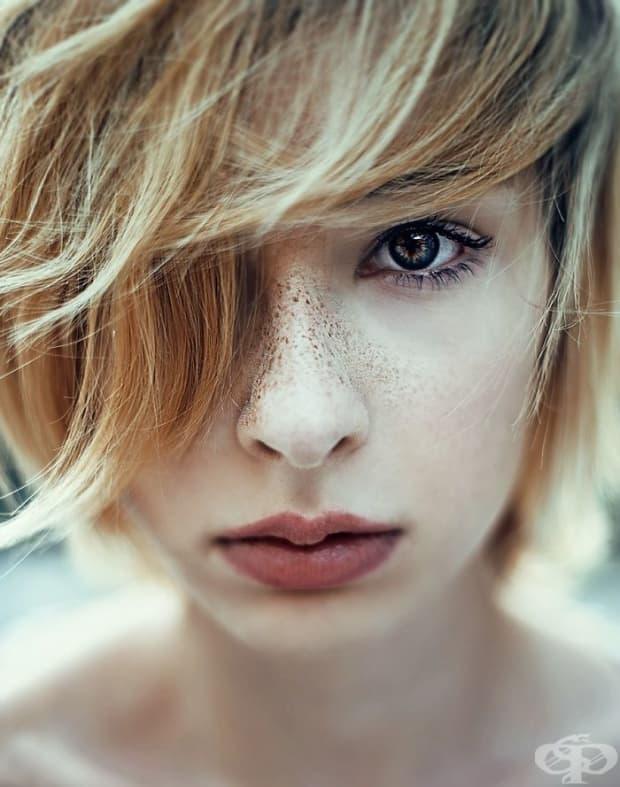 15 хипнотизиращо красиви хора с лунички