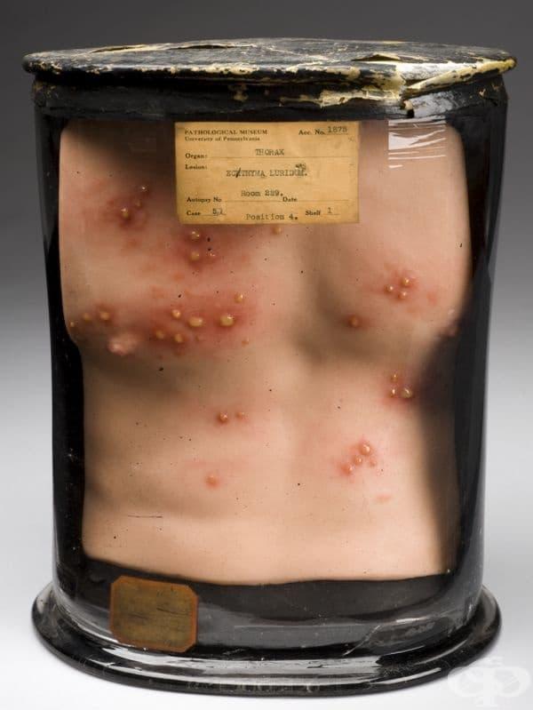 Анатомичен модел на гръден кош, създаден Джоузеф Tоуне от 1825 година