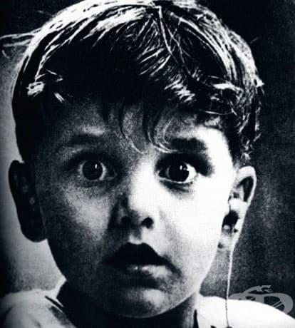 Удивление: Реакцията на Харолд Уитълс, който е глух от раждането си, когато чува за първи път, след поставяне на слухов апарат.