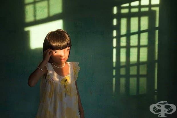 """Болка: Нгуйен Ди Ли, 9-годишна и жертва на """"оранжевия агент"""""""
