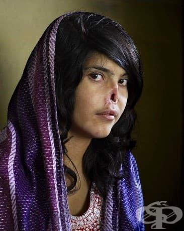Кураж: Тази афганистанска жена е продадена на мъжа си от своя баща. Когато бяга от мъжа си, ушите и носа й са отрязани като наказание, а тя бива изпратена обратно при съпруга си.