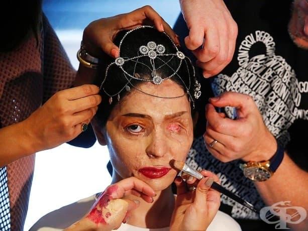 Индийският модел Решма Кереши, оцелял след киселинна атака, преди дефилето си за колекцията на индийската дизайнерка Арчана Кочар  Пролет/Лято на 2017 по време на New York Fashion Week.