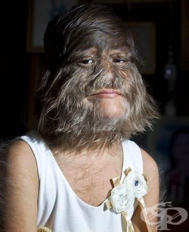 Жена със синдрома на Амбрас. През Средновековието тези хора са били наричани върколаци.