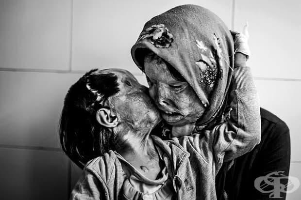 Сомайех Мехри (29) и дъщеря й Рана Авганипур (3) си дават целувка една на друга. Те твърдят, че хората  вече не обичат да ги целуват, след като са обезобразени в нападение с киселина.