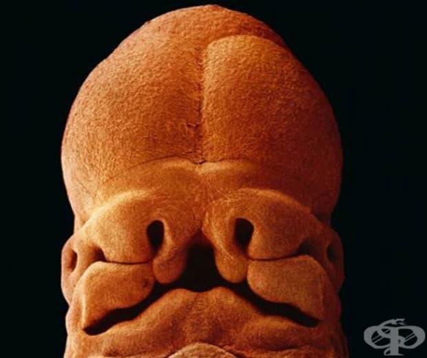 На 5 седмици зародишът е дълъг 9 мм; вече можете да различите лице с отвори за уста, ноздри и очи.