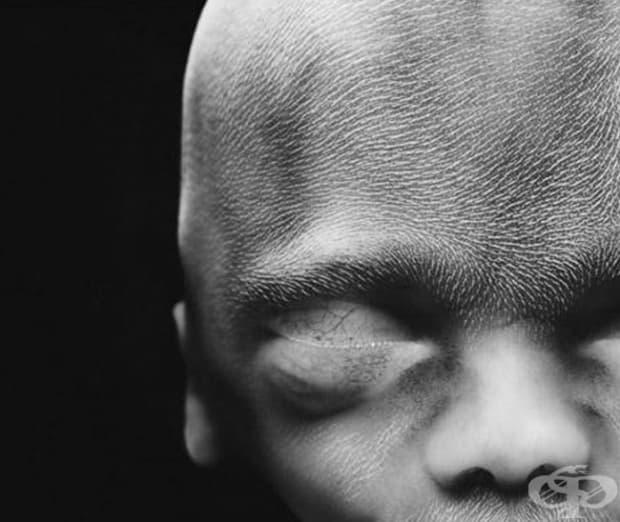 20 седмици. Фетусът вече е 20 см. На главата му започва да се формират косми.