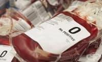 Пациенти с нулева кръвна група са по-застрашени от смърт при тежка травма с кръвозагуба