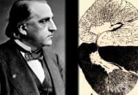 Разграничаване на болестта на Паркинсон от други неврологични нарушения от 19-ти век