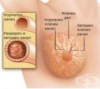 Кърмене и запушени млечни канали