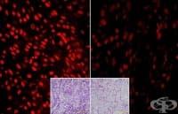 Лечение на рак с витамин С премина успешно клинични изследвания