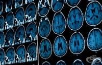 Болестта на Алцхаймер може да бъде заразна