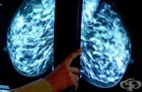 Одобриха две нови лекарства за лечение на рак на гърдата в напреднал стадий