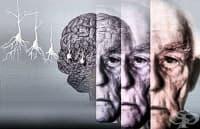 Пресконференция за науката, терапията и възможностите при болестта на Алцхаймер ще се проведе в Златни Пясъци