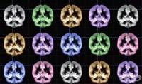 Японски учен: Щастието се крие между двете мозъчни полукълба (Снимка)