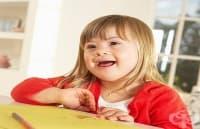 Британски лекари прилагат по-щадящ метод за диагностициране на синдром на Даун