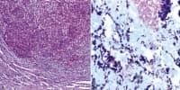 Абсцес на белия дроб