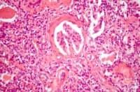 Дифузен склерозиращ гломерулонефрит