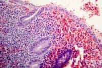 Хроничен апендицит
