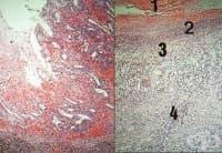 Хронична язва на стомаха или дванадесетопръстника