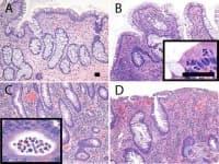 Възпалителни заболявания на дебелото черво
