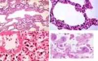 Вирусна пневмония